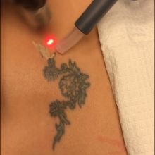 Phoenix Tattoo Removal With Zimmer Cryo