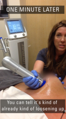 Salzman - Z Wave treatment demo - capsular contracture post breast augmentation