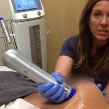 Salzman - Z Wave treatment demo capsular contracture post breast augmentation