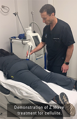Dr Merrick Elias - Z Wave demo for cellulite