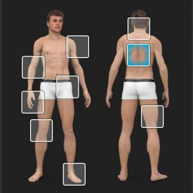 OptonPro -Body Parts - Therapy Recommendations