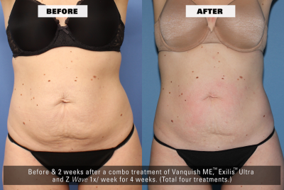 Before After Front - Z Wave for Enhanced Fat Reduction