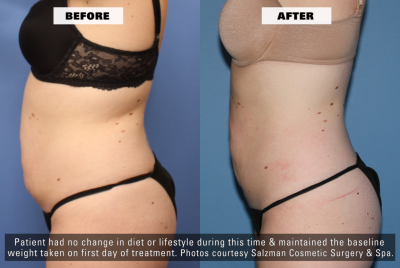 Before After Side - Z Wave for Enhanced Fat Reduction